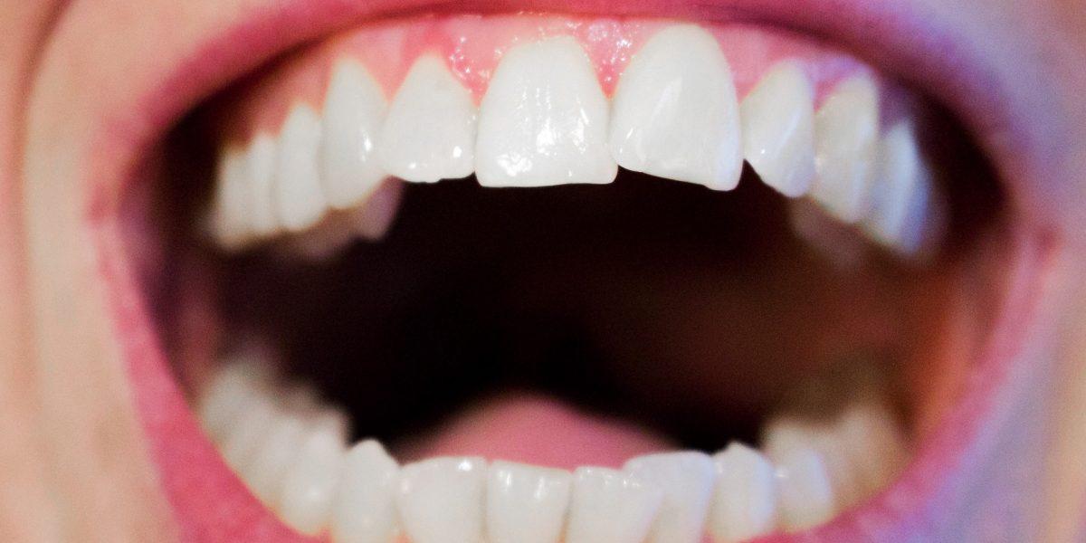 consejos-de-higiene-dental