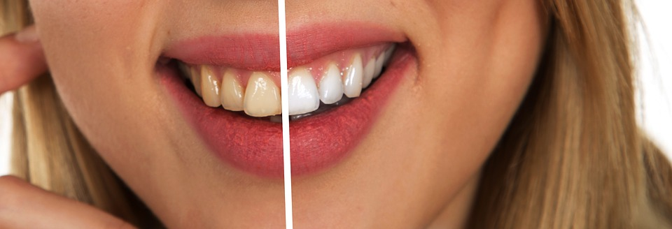 5 bebidas que manchan tus dientes
