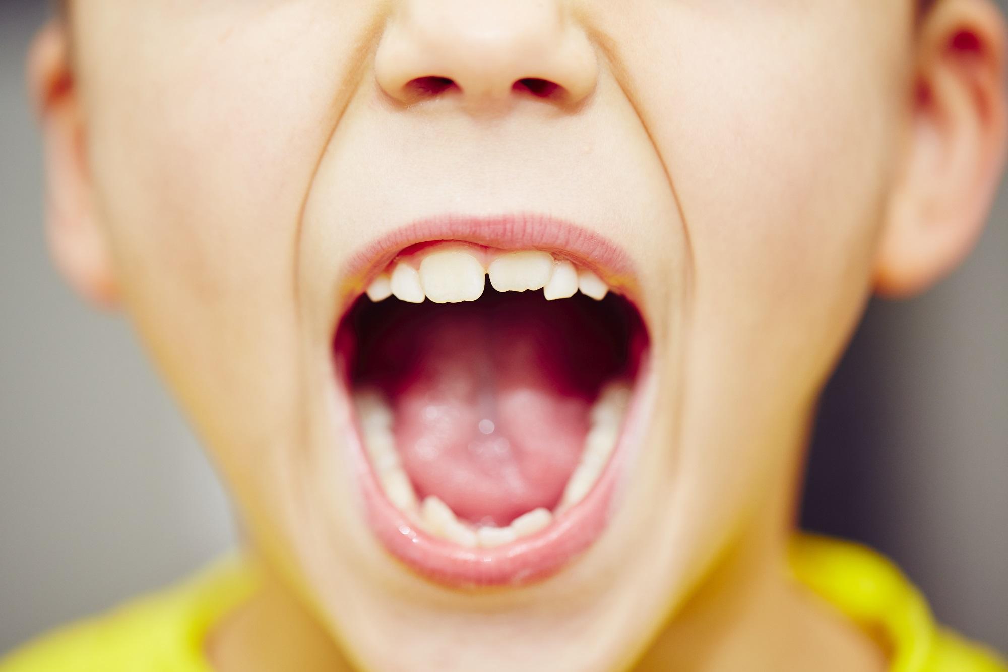 Tipos de ortodoncia para niños en Valencia