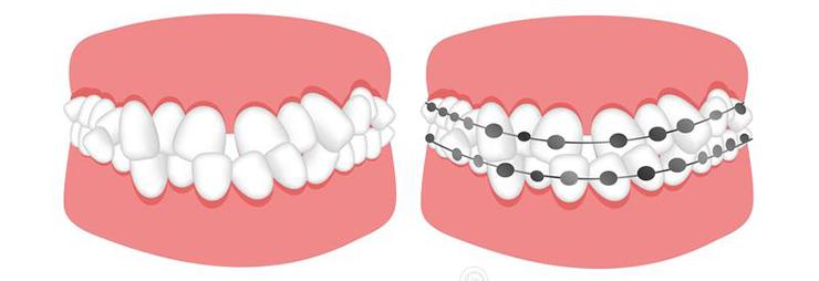 tratamiento de la maloclusión dental